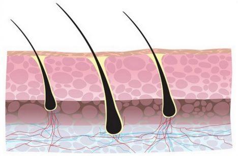 Foto: Válka proti lysině: Své vlastní vlasy si nyní můžete transplantovat!
