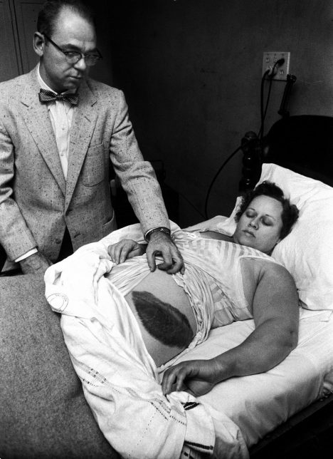 American Dr Moody Jacobs shows a giant bruise on side and hip of his patient, Ann Elizabeth Hodges (1923 - 1972), who had been struck by a meteorite while inside her home, Sylacauga, Alabama, late 1954. (Photo by Jay Leviton/Time & Life Pictures/Getty Images)
