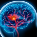 Mozková mrtvice: Počet těchto příhod se každým rokem zvyšuje!