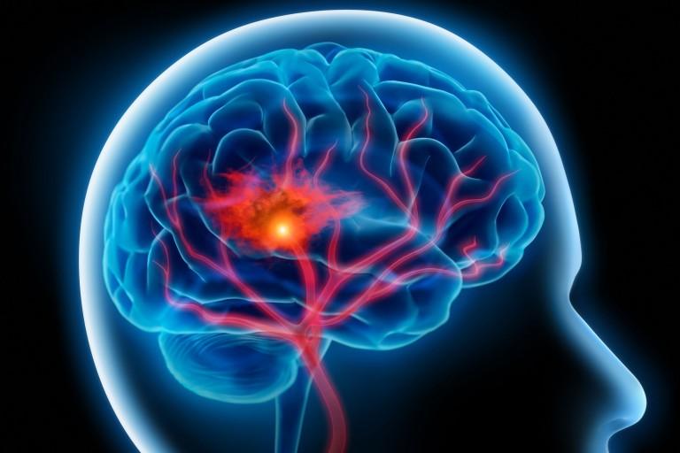 1 - Cévní mozková příhoda je akutní stav, vyžaduje neodkladnou lékařskou pomoc.