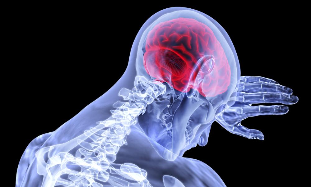 Pozor na mozkovou mrtvici