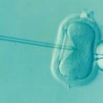 Pojišťovny zaplatí onkologickým pacientkám mražení vajíček