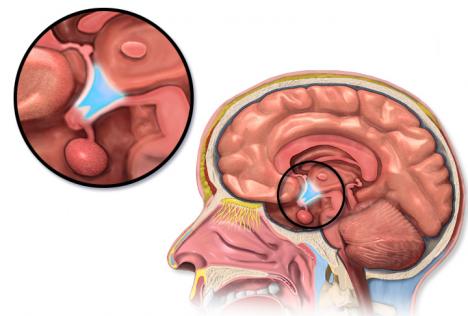 Foto: Abeceda centrální nervové soustavy: Víte, co jsou gyry?