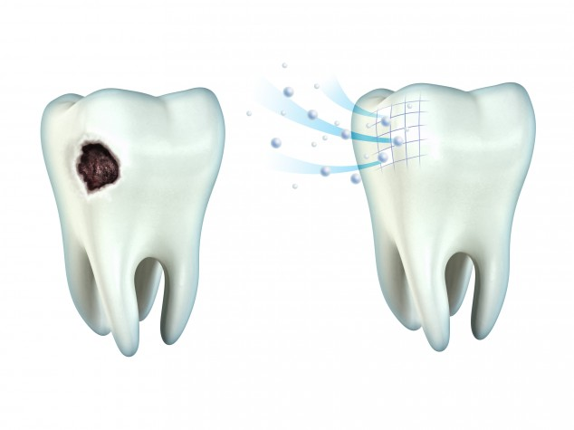 Depulpin v zubu