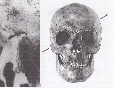 Lebka Karla IV. prozrazuje zahojené zranění z mládí.