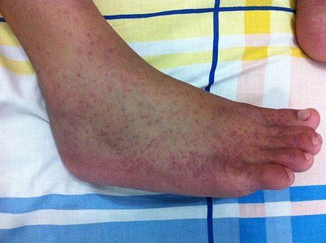 Foto: Chikungunya: Proč jsme na tuto nevyslovitelnou nemoc krátcí?