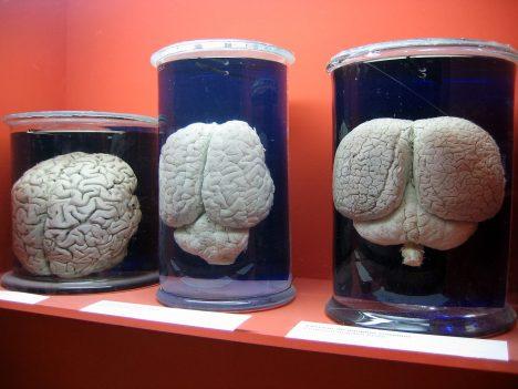 Foto: Stres je to nejlepší, co člověk může zažít: Alespoň to tvrdí vědci!