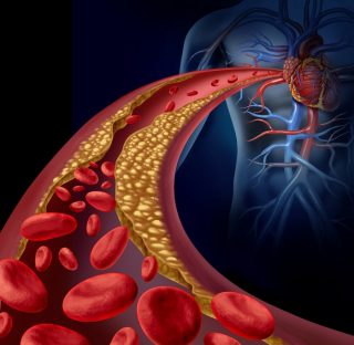 Clogged artery and atherosclerosis disease medical concept with a three dimensional human artery with blood cells that is blocked by plaque buildup of cholesterol as a symbol of vascular diseases.