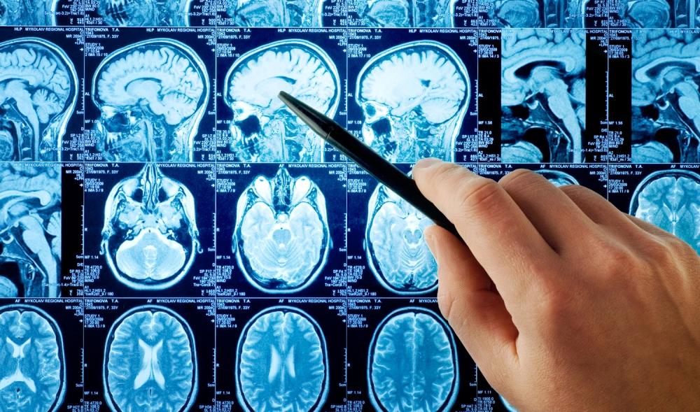 neurology_2